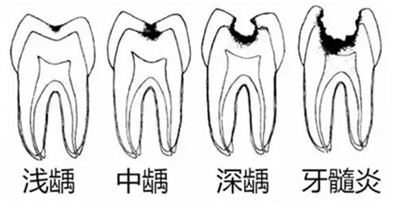 口腔修复知识:关于龋齿